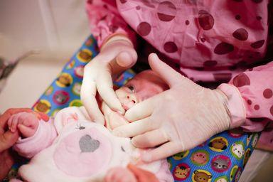 """Vídeo! Odontopediatra tira dúvidas e esclarece sobre 'língua presa"""""""